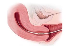transfer embrioni ovodonazione italia europa